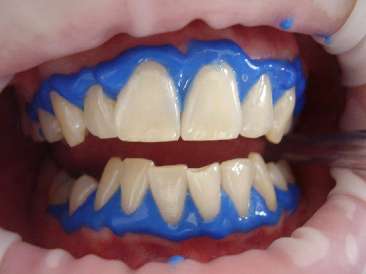 Laser Teeth Whitening Long Island