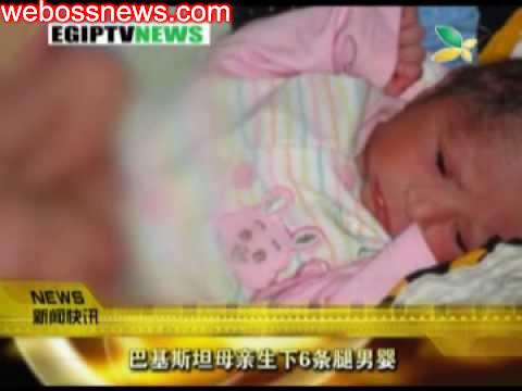 巴基斯坦母親生下6條腿男嬰