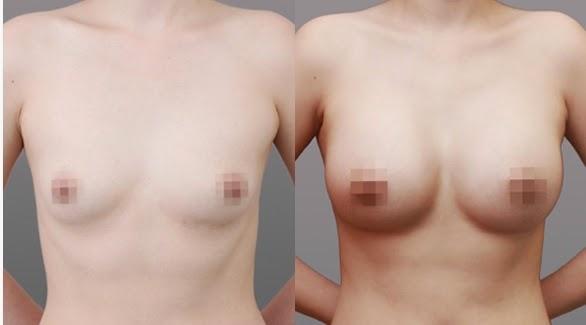 Sebelum dan sesudah operasi plastik payudara di Wonjin tampak depan