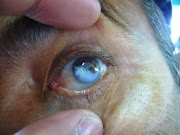 Eye damage from a chemical spill