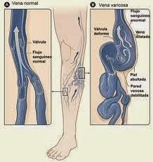 Varises . Gejala dan Penyebab Varises ( Urat Biru Di kaki )