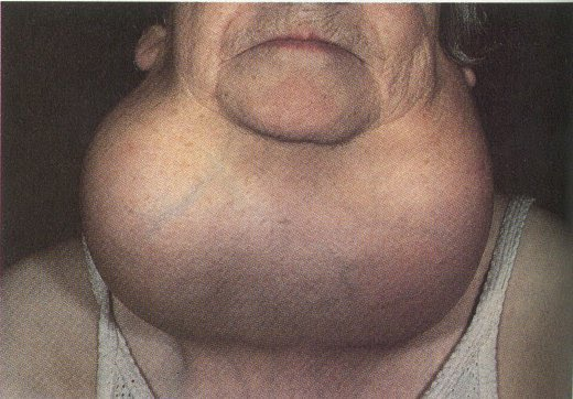 Sometimes the thyroid becomes enlarged -- due to Hashimoto's disease