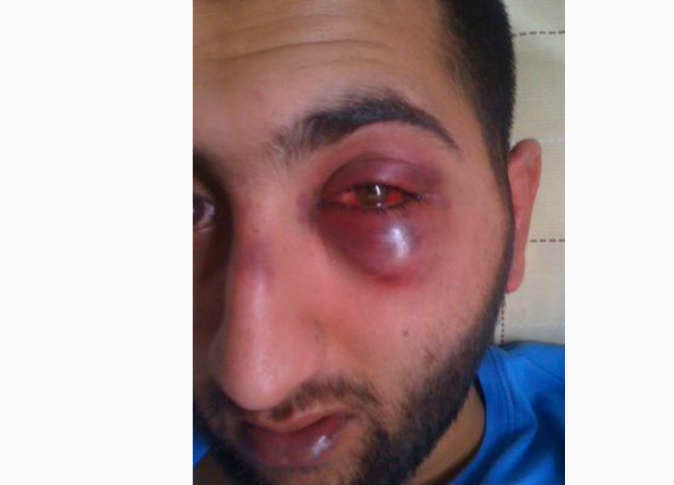 الشرطة البريطانية تعنف رجلا لسبب غريب جدا