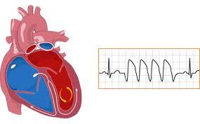 ventricular tachycardia definition