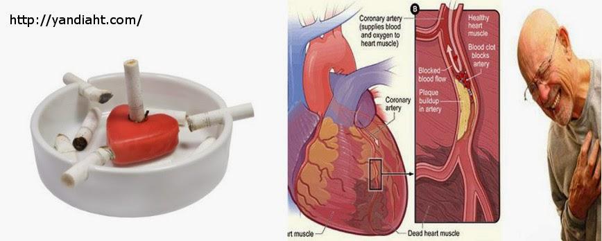 Rokok Sangat Sadis Merusak Jantung
