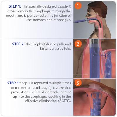 gallbladder diet after surgery air pockets