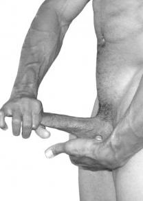 Ciruga para cortar el frenillo del pene o glande