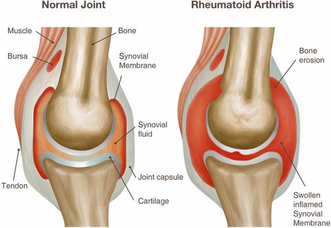 Rheumatoid Arthritis Causes Symptoms Diagnosis