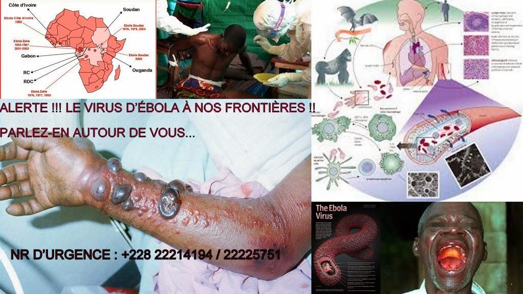 Ebola :Santé