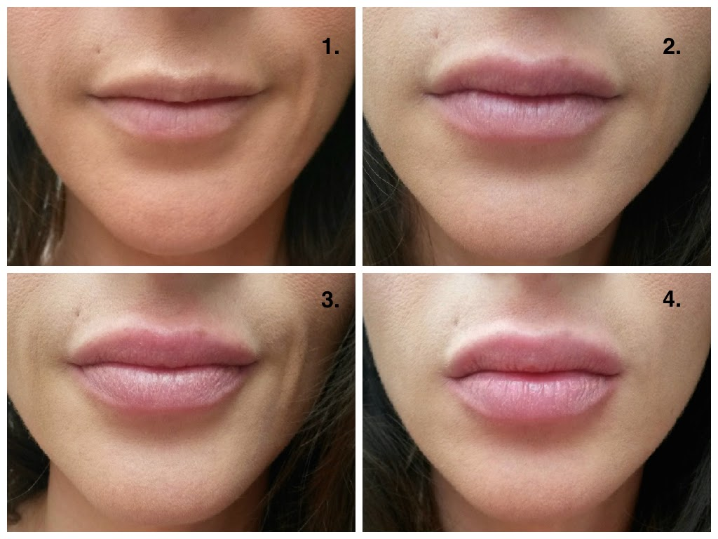 Fullips before and after UK review
