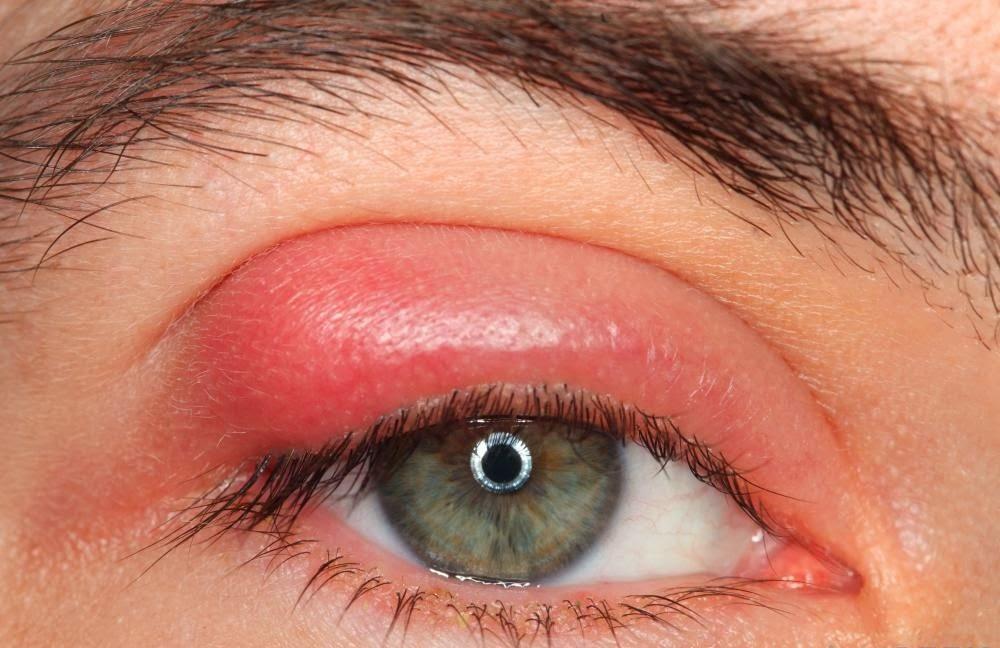 Cum dans l'infection de l'oeil