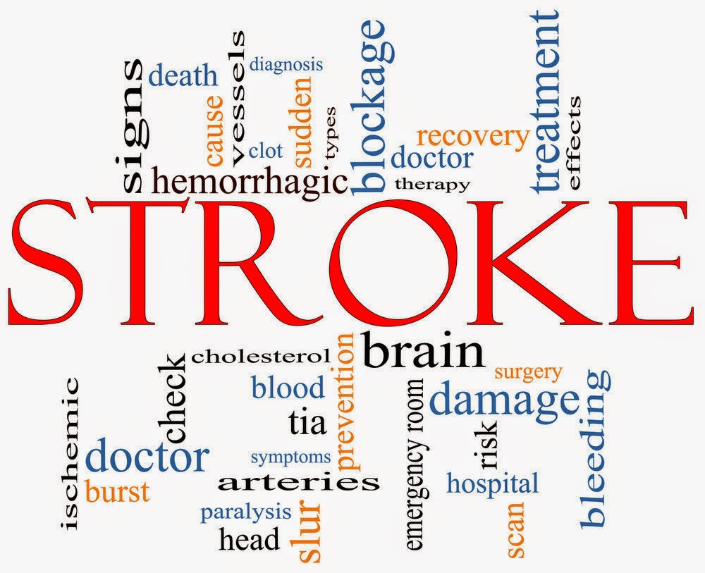 brain stroke causes and symptoms  Symptoms and Causes of Disease and The Risk of Stroke | DjogloNet