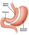 Laparoscopic Gastric Sleeve Surgery