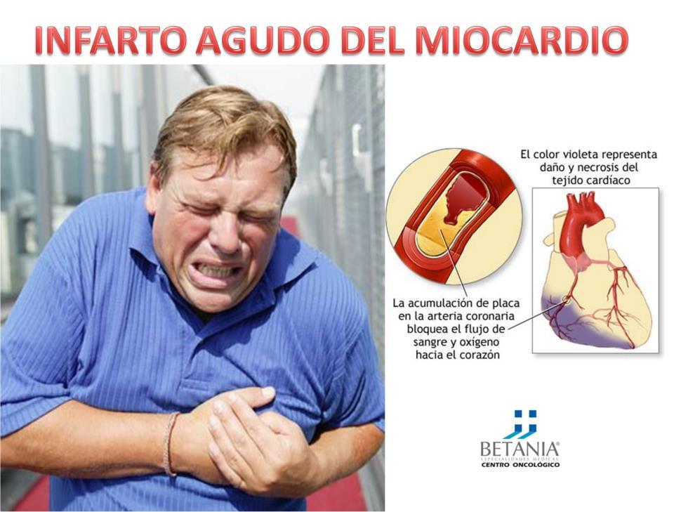 Medicina Cultural: Infarto Agudo del Miocardio