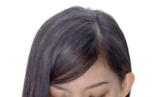 Foto Perawatan Rambut Beruban di Usia Muda Remaja