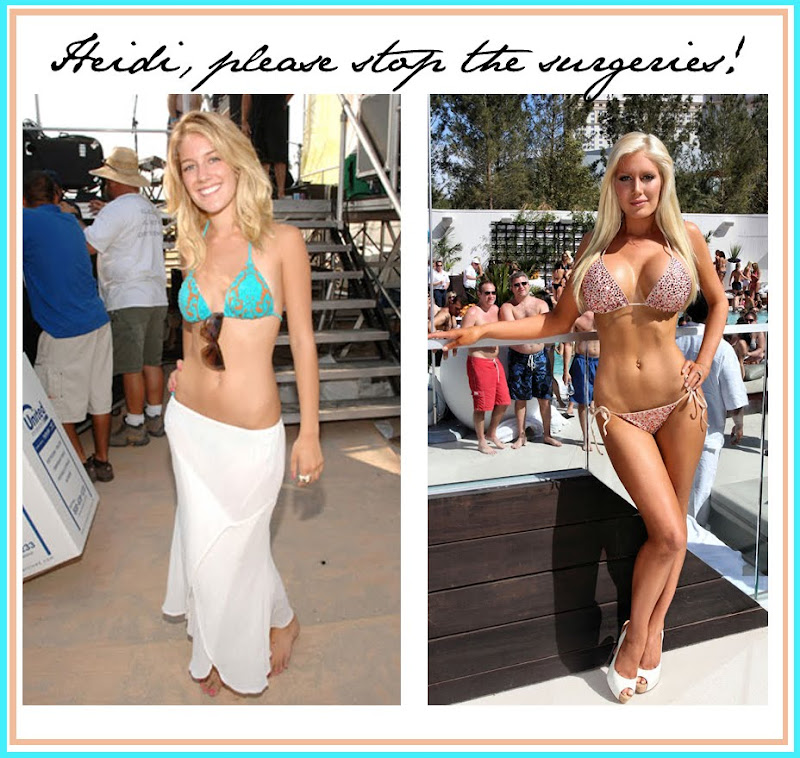 Confirm. happens. Heidi montag breast implants