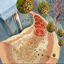 Inflamação da artéria