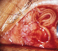 19 cm long worms live in the Eye of This Man
