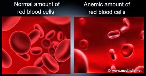 vitamin shaklee untuk anemia