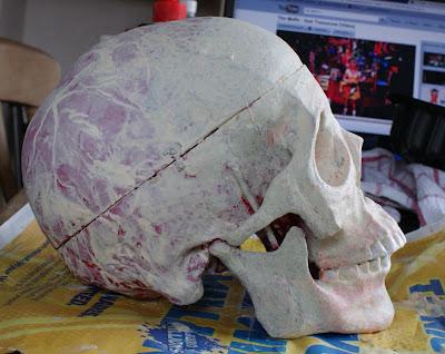 Skull, side view.