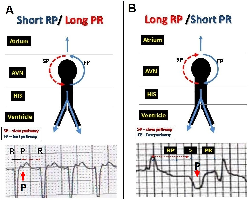 ECG Rhythms There Is A Reason To Check The Initiation Of