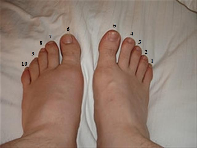 Why Does My Left Foot Swell When I Drink Alcohol