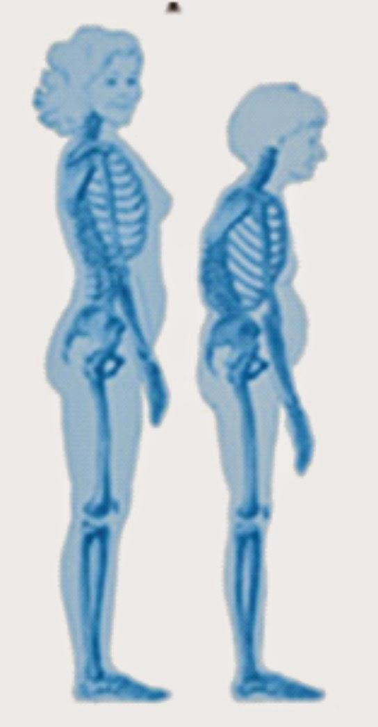 Mengapa di Lansia Sering Mengalami Osteoporosis