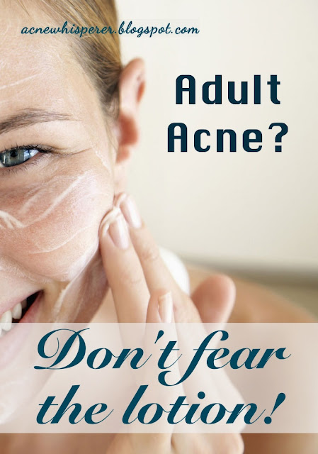 Adult Acne don't fear the lotion