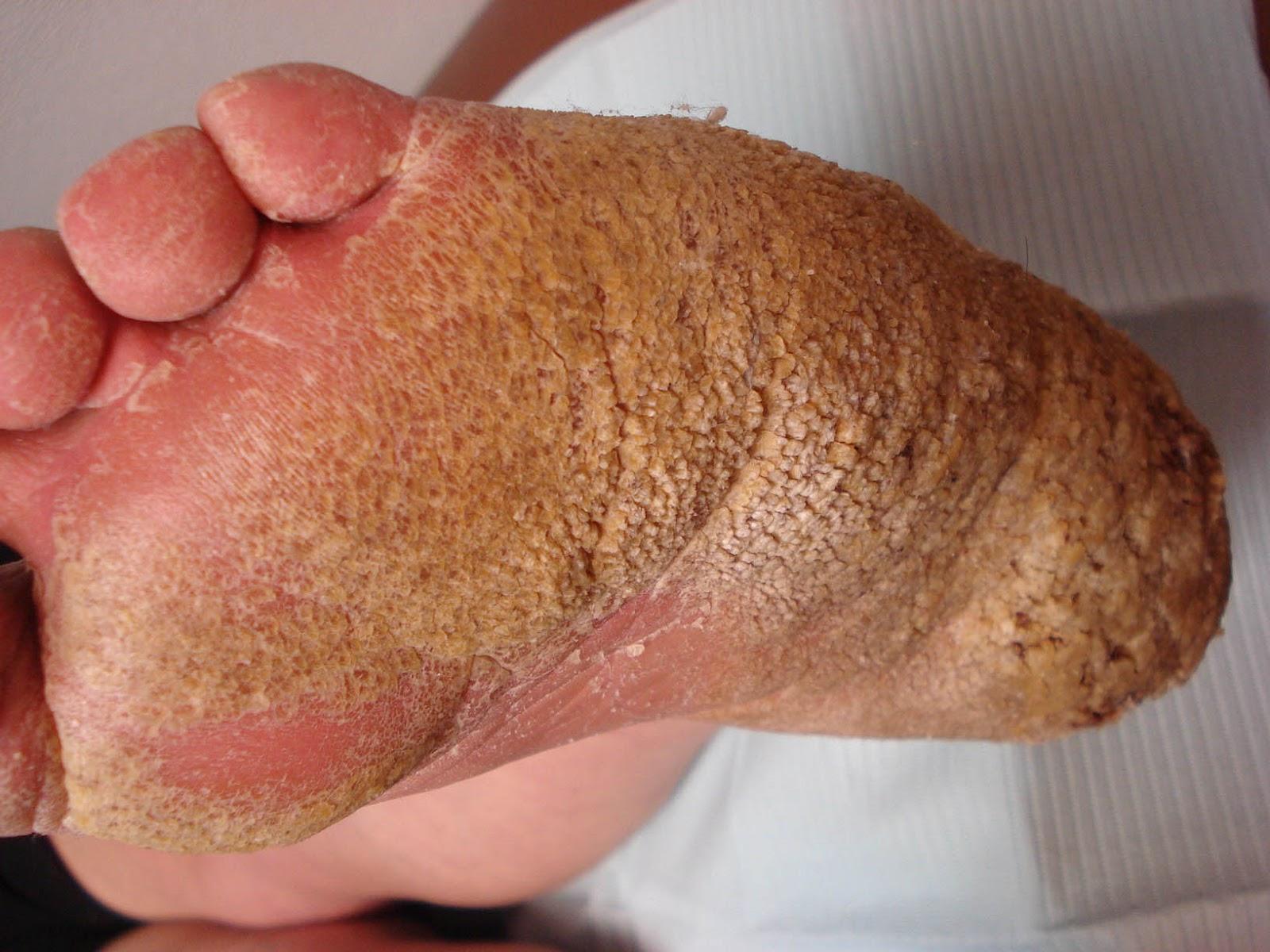 Ectodermal Dysplasia Nails Images