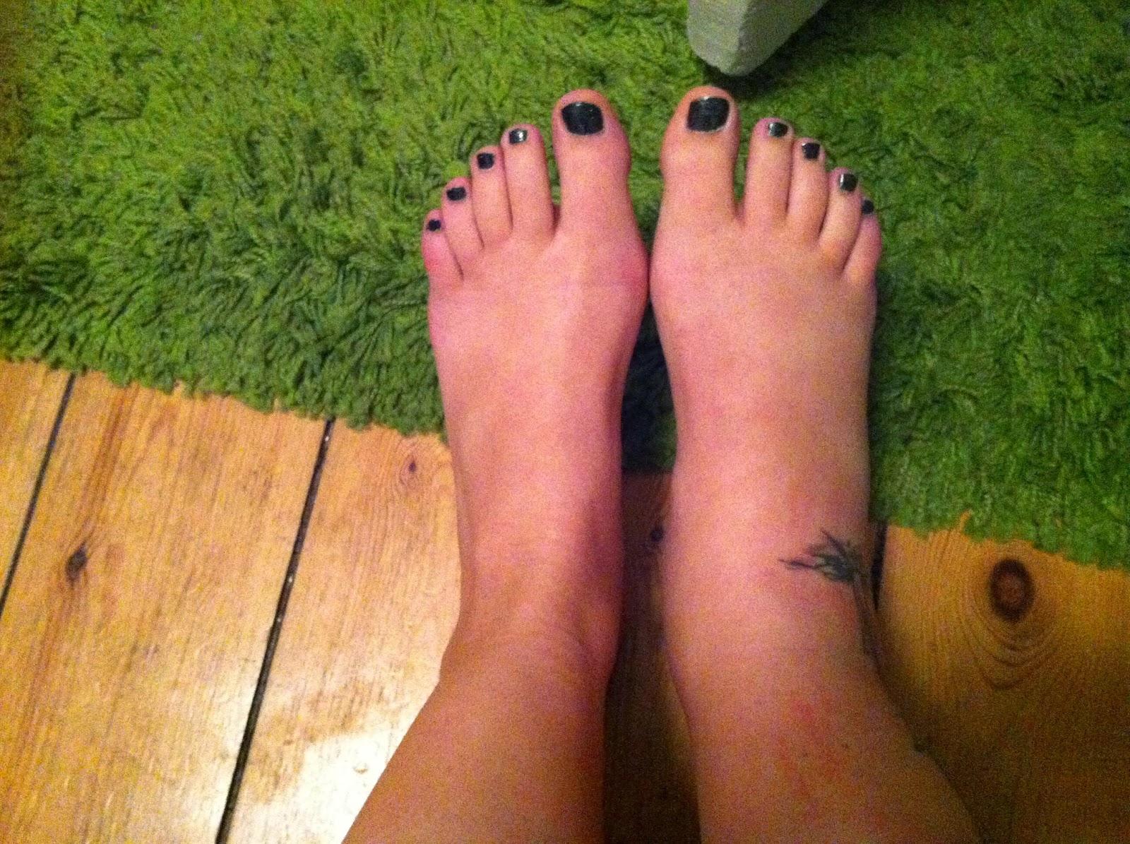 hævede fødder ankler