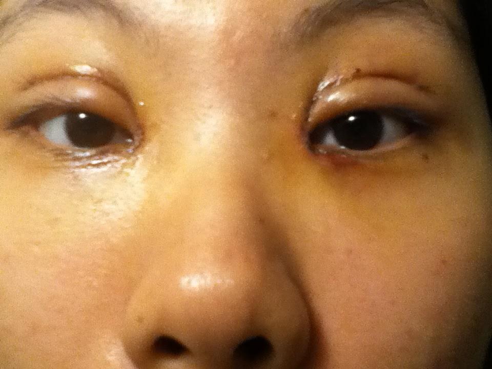 Double Eyelid Surgery Gone Wrong Double eyelid surgery threadBad Double Eyelid Surgery