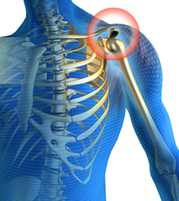 ... Joint Pain - Causes, Treatment And Exercises For Natural Pain Relief