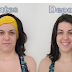 Resenha: Limpeza de Pele Ultrassônica