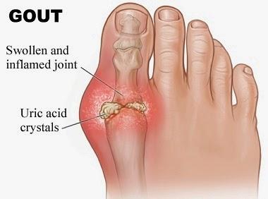 Gout, Big Toe