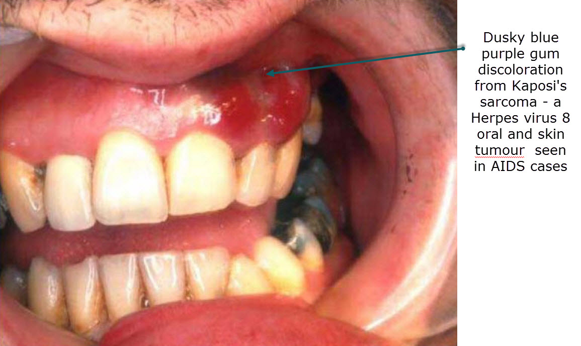 Oral Medicine for Dental Students - Viral Infections Blog ... Kaposi Sarcoma Mouth