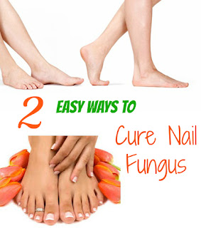 feet without nail fungus