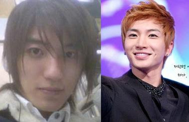 Korean Celebs who might've received plastic surgery Pt. 1