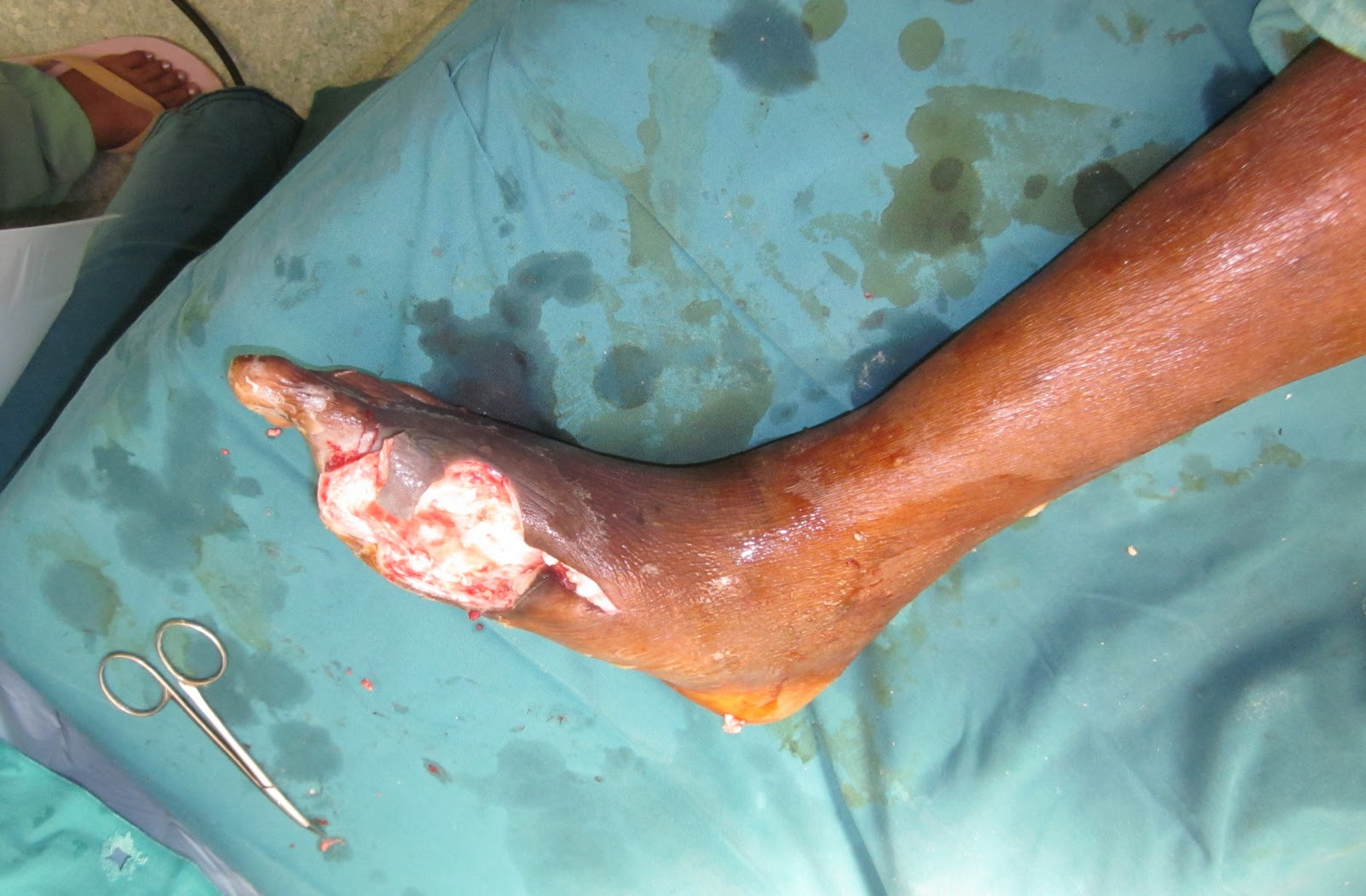 Gangrene Infection Causes, Symptoms & Treatment