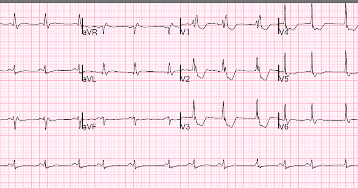 Male in his 50's resuscitated from ventricular fib and comatose