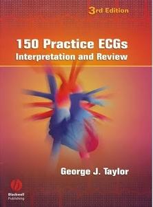 150 Practice ECGs Interpretation and Review 3rd Edition
