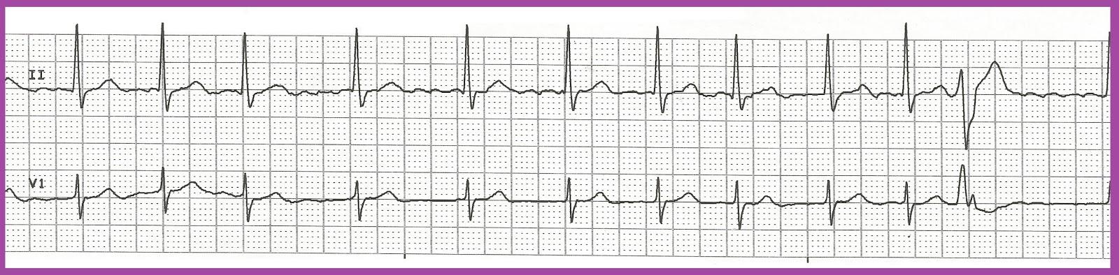 Atrial fibrillation rhythm strip