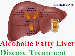 Alcoholic Fatty Liver Disease Treatment
