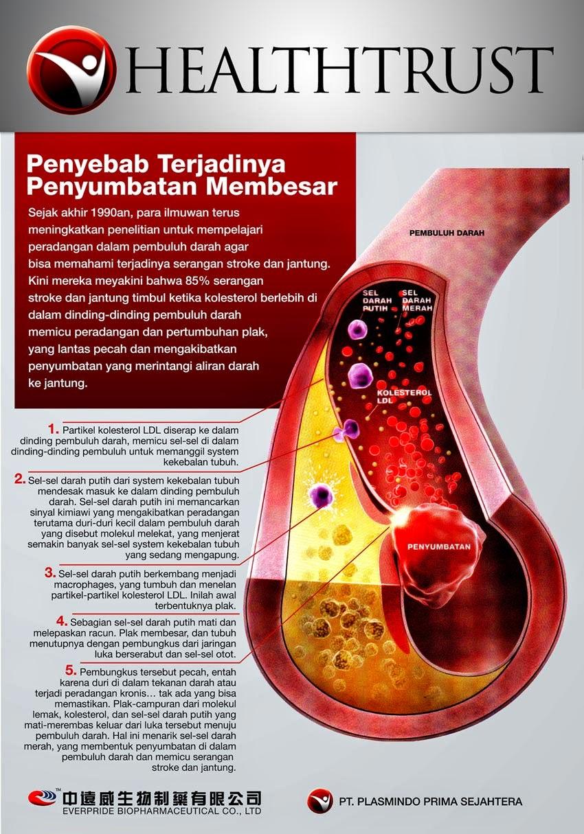 Cara Mencegah Terjadinya Penyumbatan Pembuluh Darah