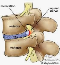 A slipped disc medical vocabulary
