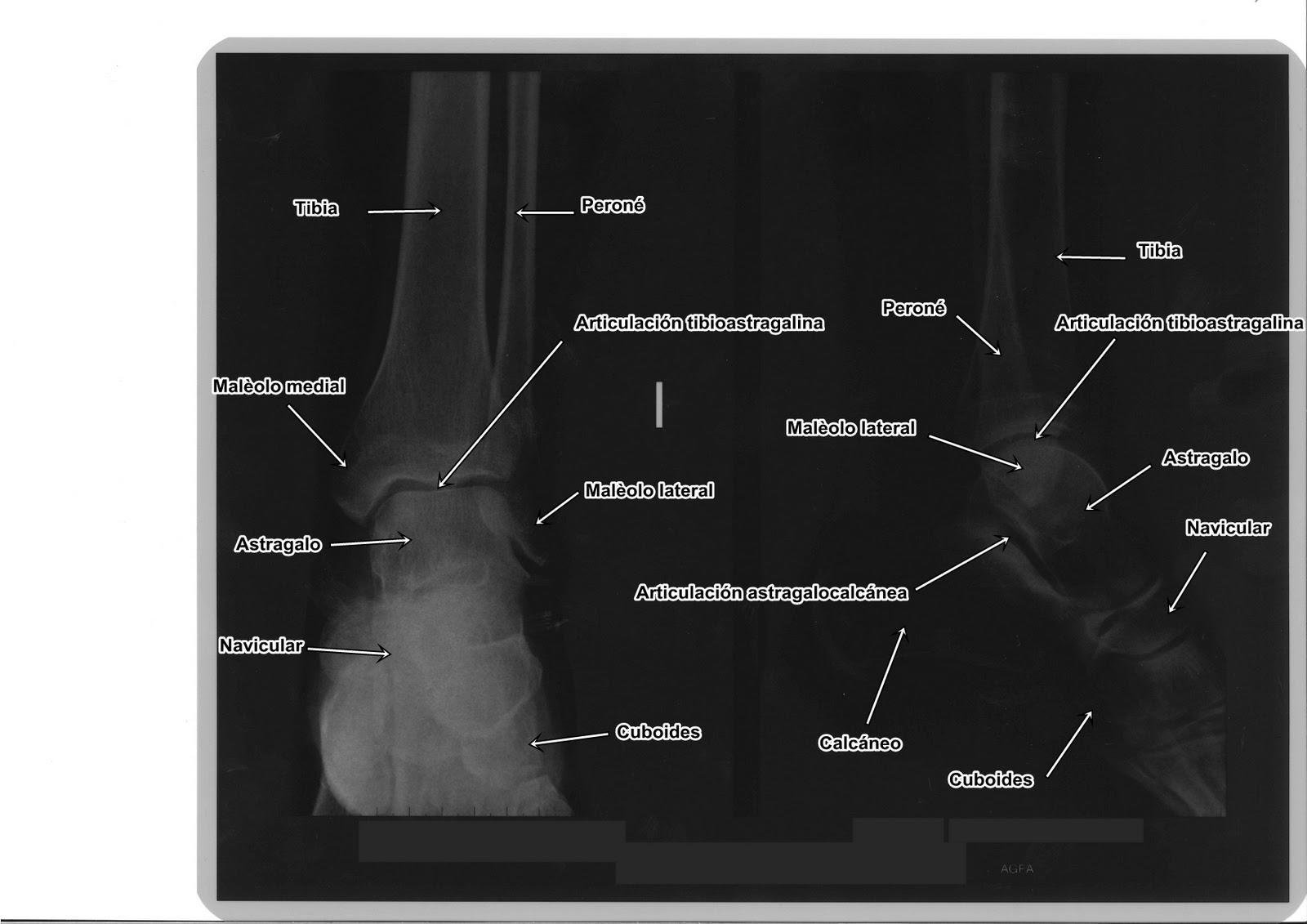 La gaceta del técnico de rayos: Radiografía de Tobillo ...