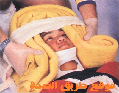 طريقة لتثبيت الرأس المكسورة تمهيداً لنقل المصاب