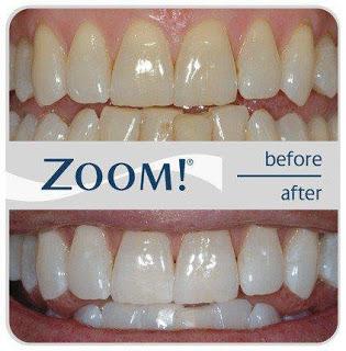Cara Ampuh Memutihkan Gigi Anda Dengan Bahan Alami !