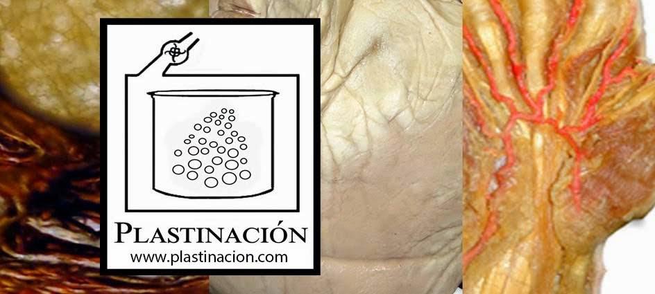 PLASTINATION - PLASTINACION