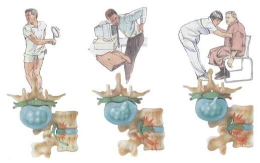 Centro de la columna vertebral hernia discal for Silla oficina hernia discal