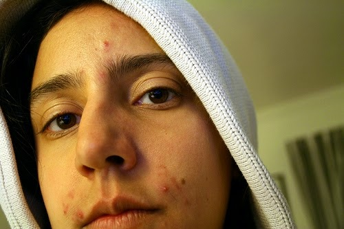 Teen Pimples Linked to Skin Cancer